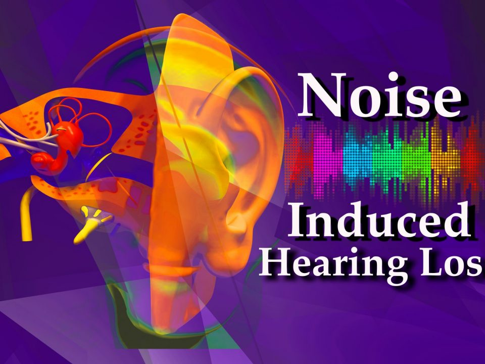 Noise-Induced Hearing Loss.